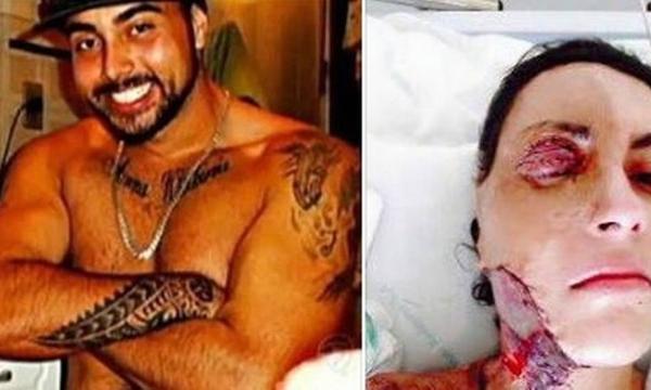 Após 224 cirurgias, jovem pede que ex que matou seus filhos não seja solto; foto é forte