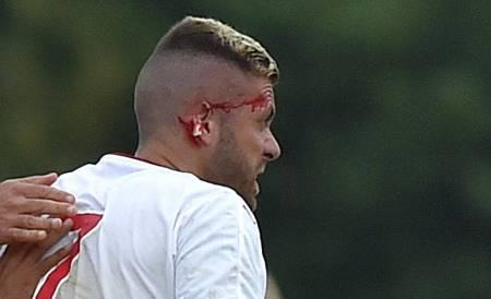 Ex-Milan é operado por perder orelha em pisão; Adversário se desculpa