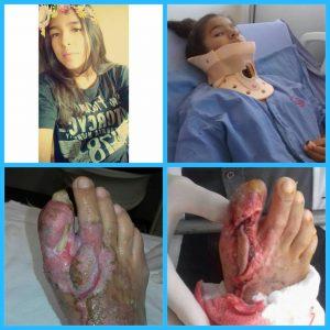 Após acidente, bela-vistense de 13 anos precisa de colaborações para tratamento contra amputação