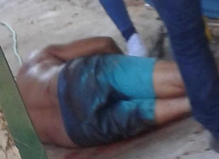 Homem é baleado na calçada de casa no centro de Bela Vista
