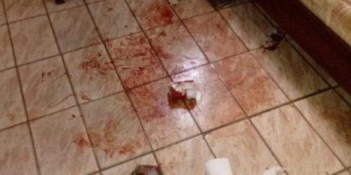 Em Bela Vista, mulher é esfaqueada no bairro Espírito Santo
