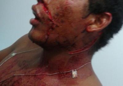 Mulher é presa após esfaquear peão em casa noturna de Coxim